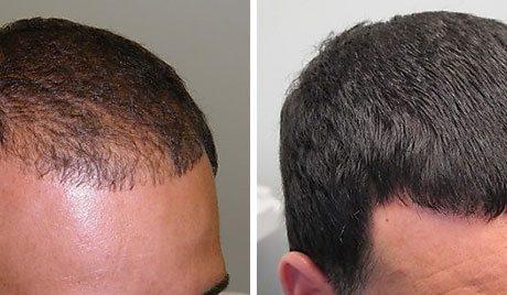 Мезотерапія для відновлення росту волосся