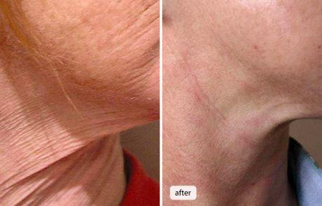 Мезотерапія проти сухості шкіри