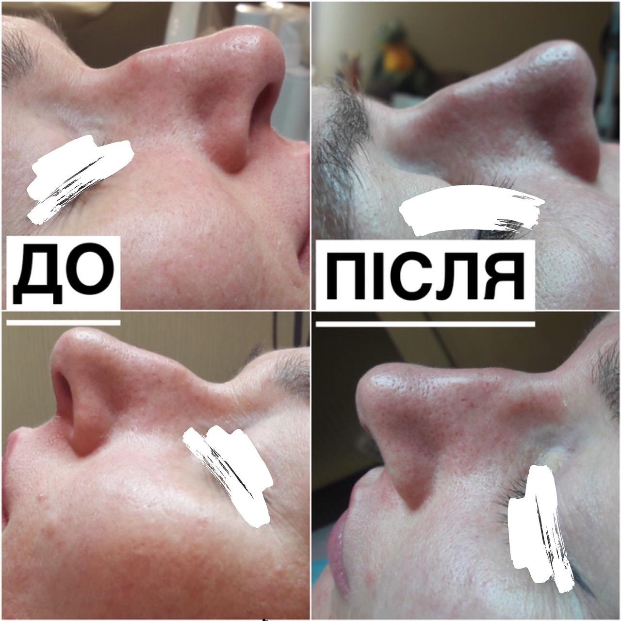Контурна пластика носу