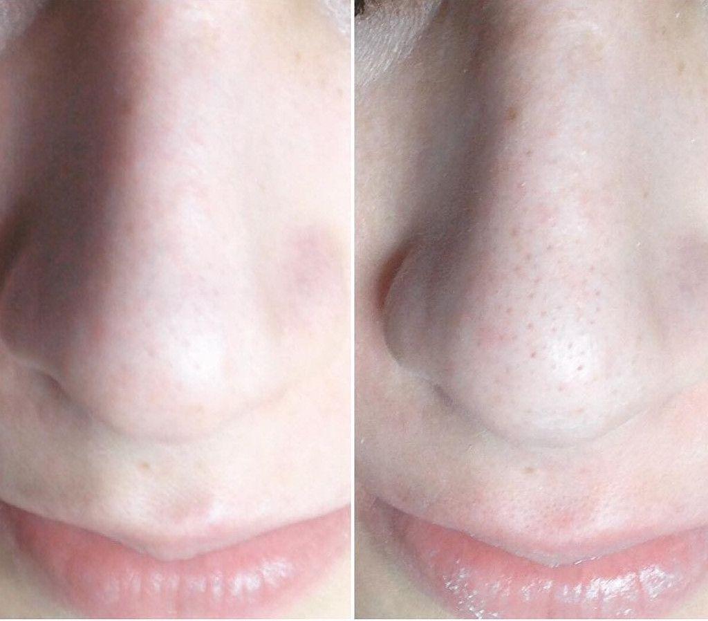 результат чистки носа