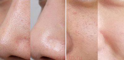 лиця до та після чистки