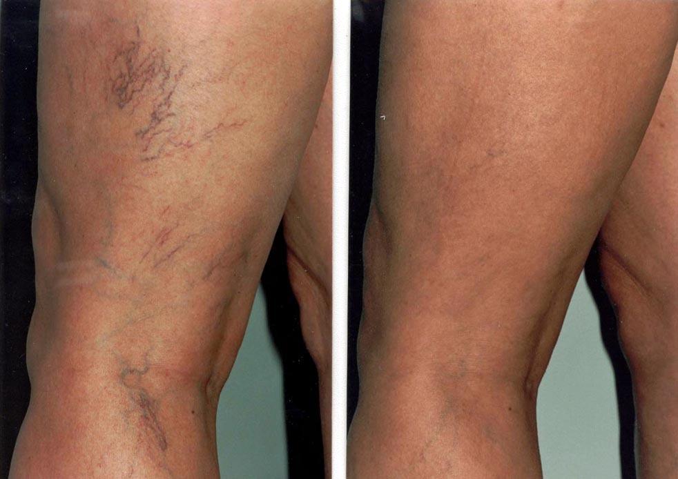 Видалення судин FineLine ногах