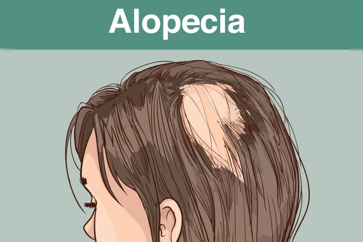 випадіння волосся це серйозна проблема Івано-Франківськ