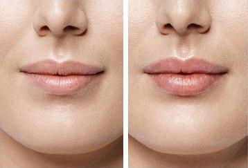 Збільшення губ FineLine: косметологічний центр у Івано-Франківську