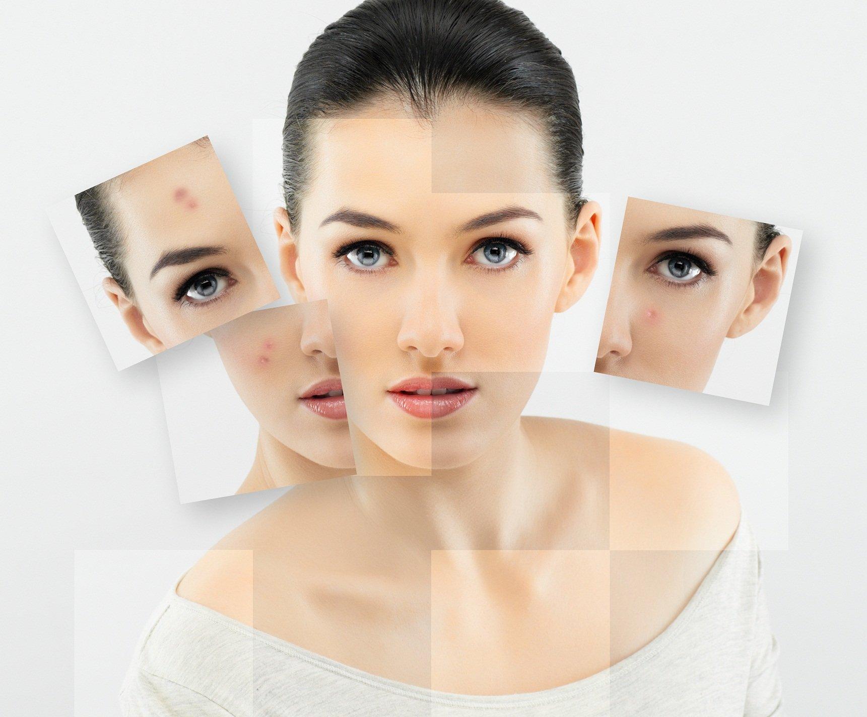 дерматологія степаненко