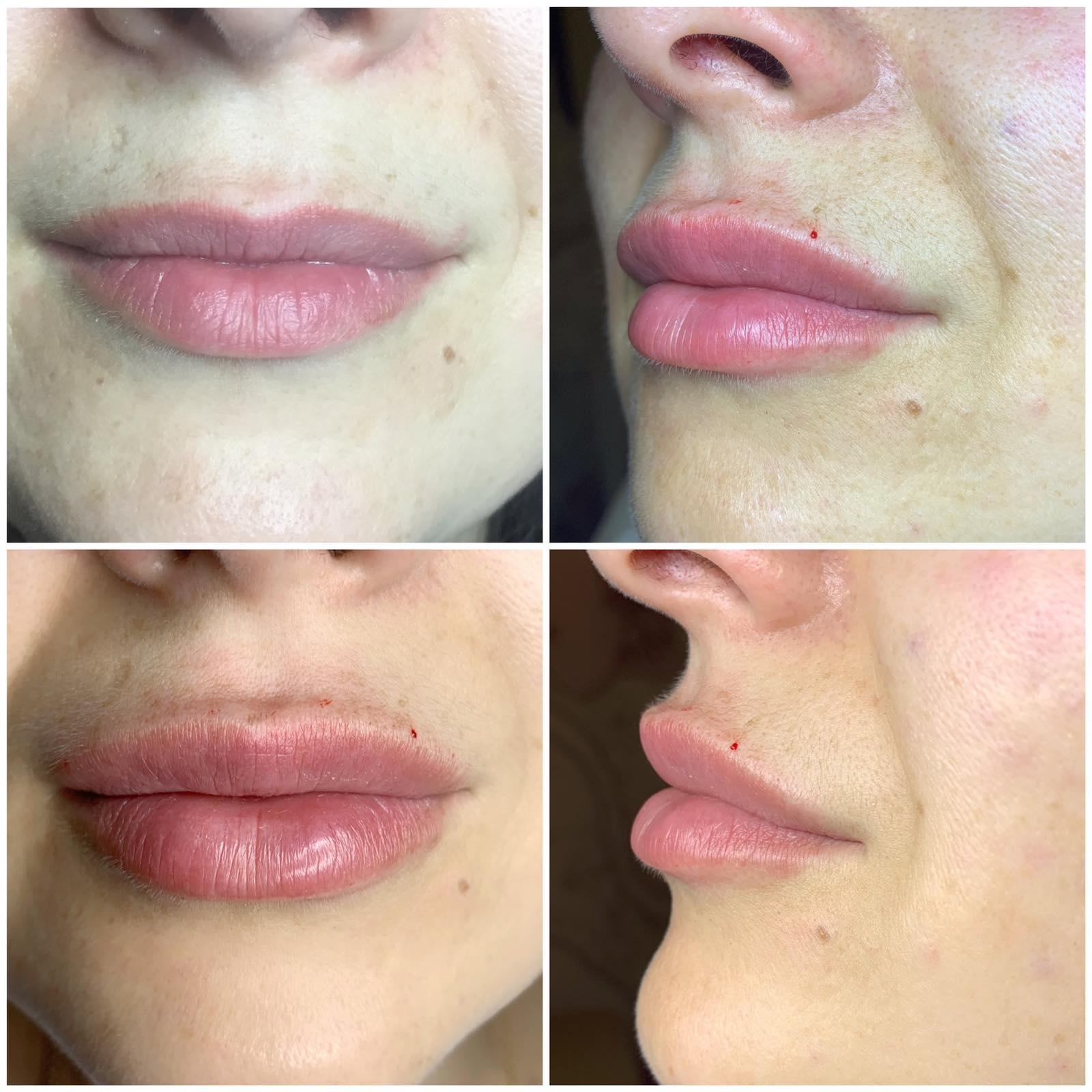 Збільшення губ: природній ефект: Івано-Франківськ