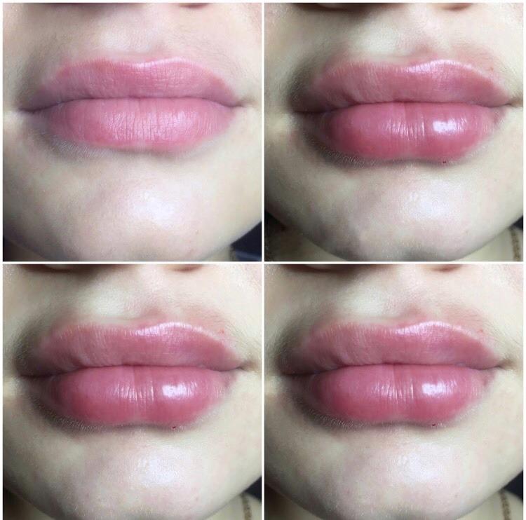 Збільшення губ: максимальний ефект: Івано-Франківськ