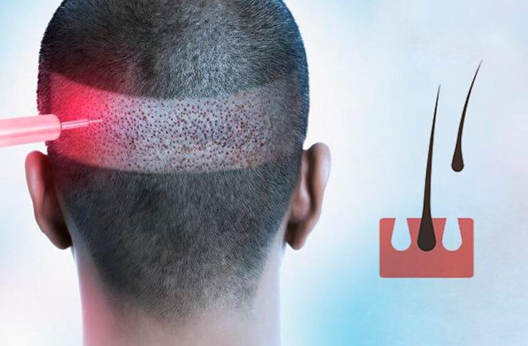 Лікування випадіння волосся у Івано-Франківську