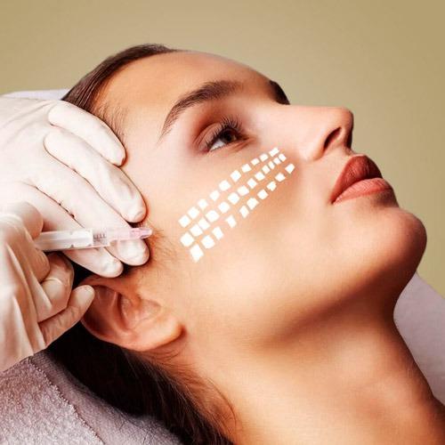 Проведення процедури мезотерапії обличчя