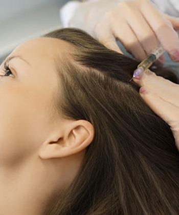 Мезотерапія волосся - 17/09/2021