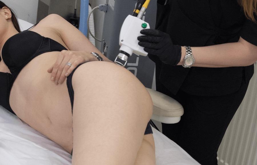 Лазерне шліфування розтяжок після вагітності