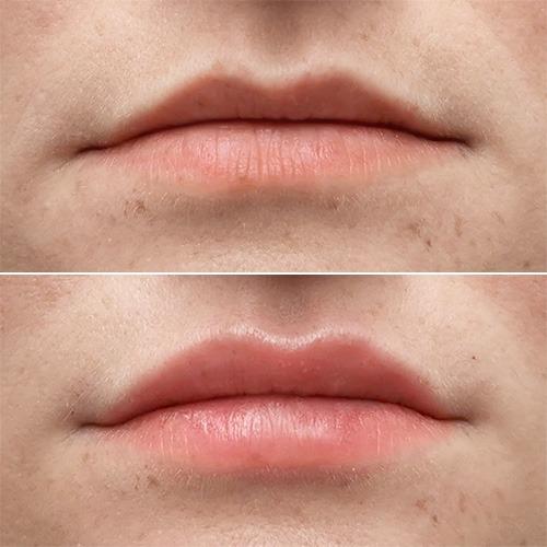 крем для збільшення губ міф чи реальність