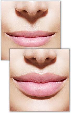 користь крему для збільшення губ