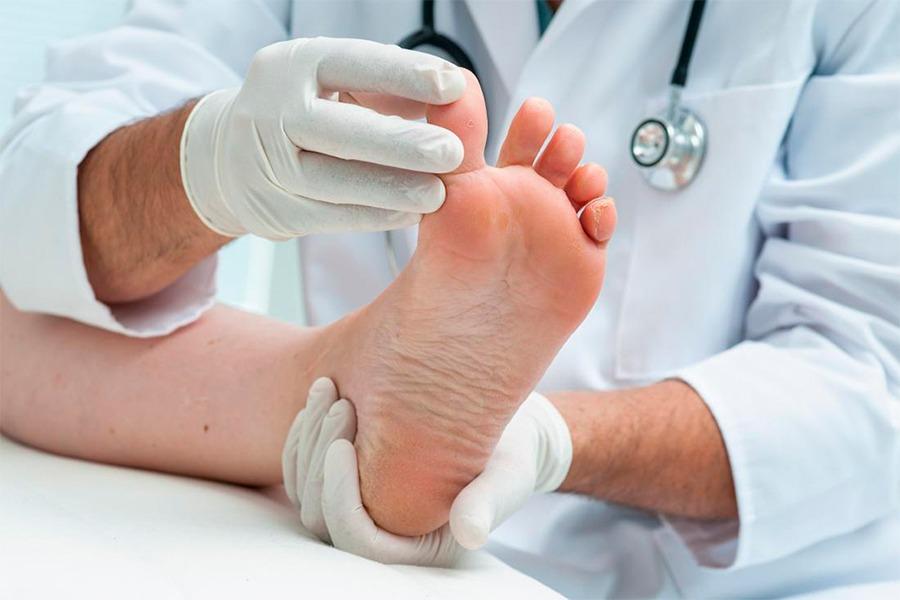 причини виникнення грибка нігтів на ногах