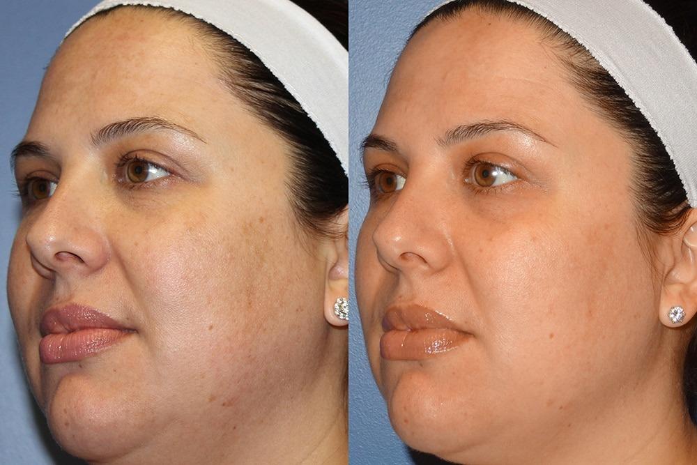 мікродермабразія до та після2